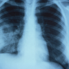 Anteroposterior (AP) x-ray shows signs of non-encapsulated pulmonary cryptococcosis in a human patient infected with Cryptococcus sp. fungal organisms.
