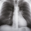 X-ray image of human lungs